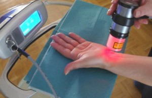 cold laser in treatment of carpal tunnel