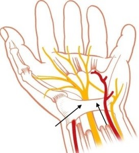 carpal tunnel and median nerv