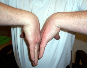 phalens signs for carpal tunnel diagnosis