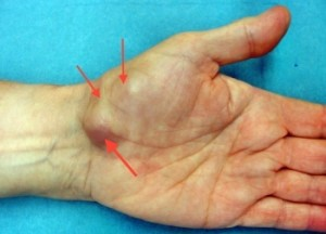 tumor as a cause of carpal tunnel syndrom