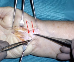 carpal tunnel recurrence